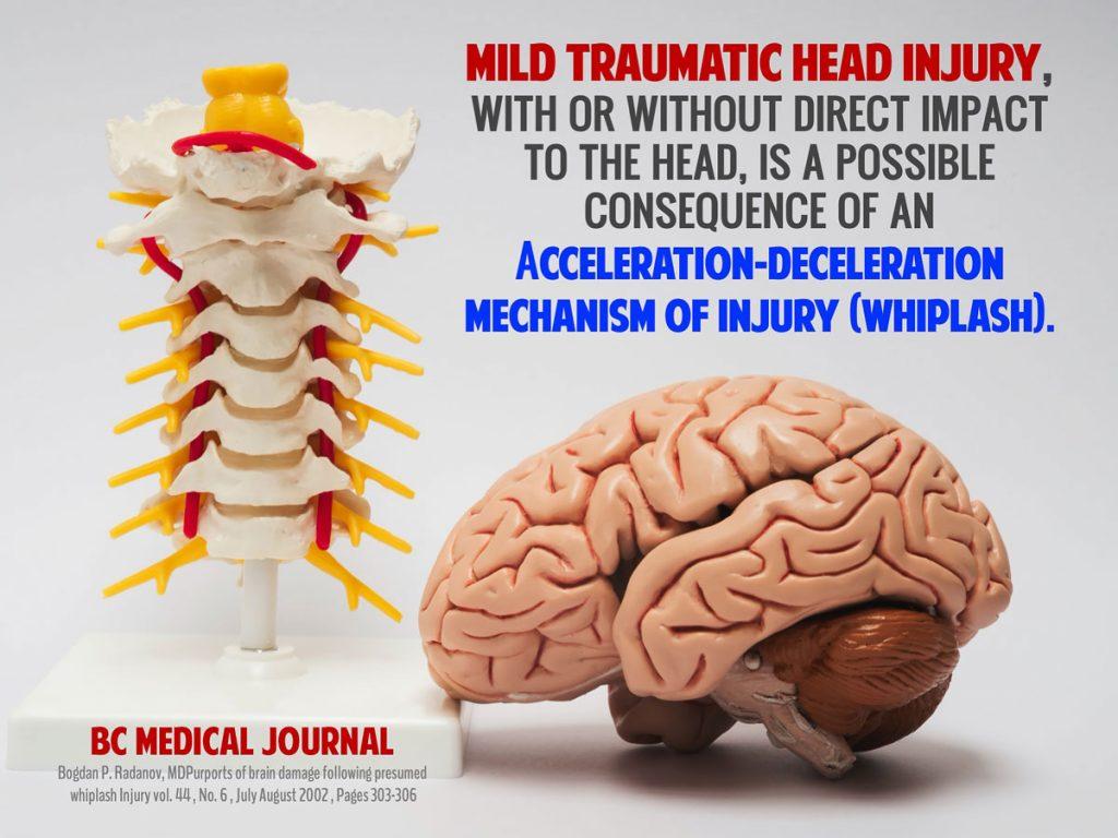 slide9-traumatic-head-injury